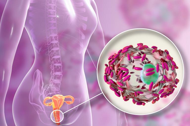 Gardnerella vaginalis ist Auslöser für eine bakterielle Vaginose