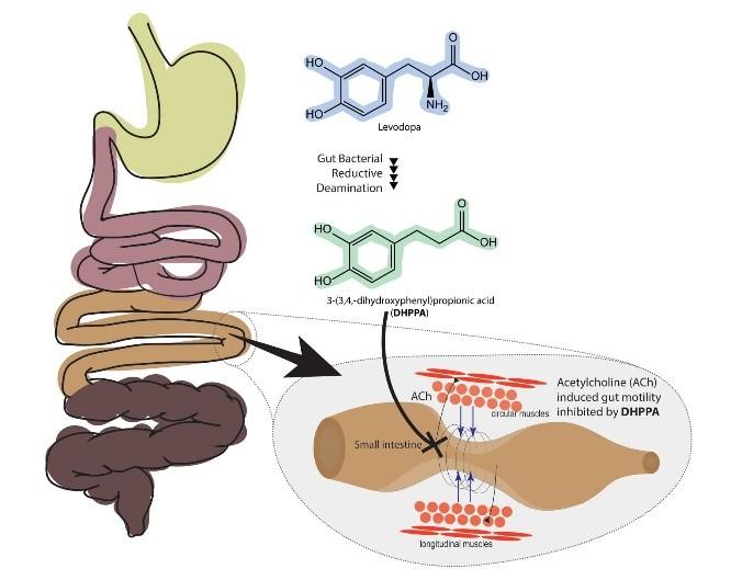 Darmbakterium schuld an Nebenwirkung von Parkinson-Medikament